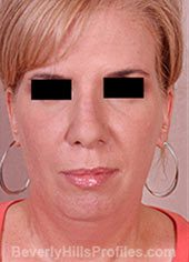 Mini Facelift Surgery. Before Treatment Photo - female, front view, patient 3