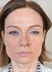 Mini Facelift Surgery. Before Treatment Photo - female, front view, patient 4
