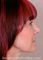Female face, after Neck lift treatment, neck, right side view, patient 1