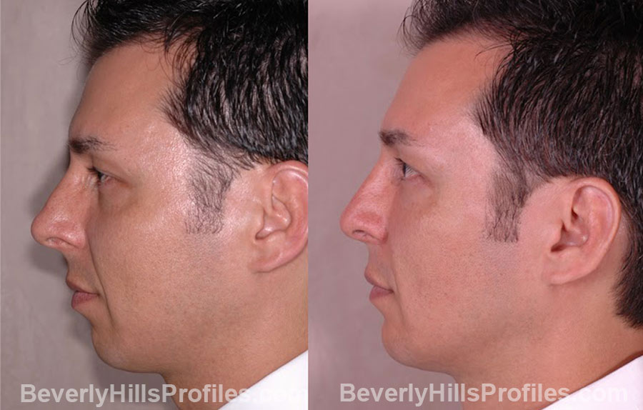 side view male patient before and after Chin Implants