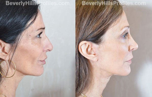 pics female before and after Facelift