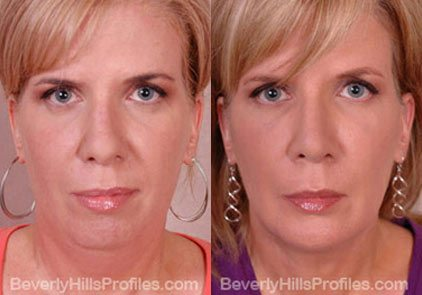 Female before and after Facial Fat Transfer - front view