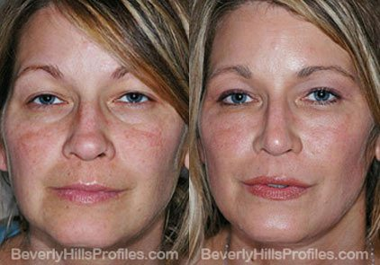 Female patient before and after Facial Fat Transfer Procedures