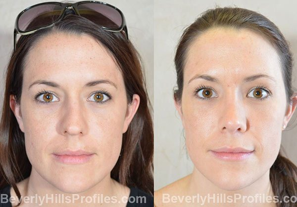 front view - before and after Facial Fat Transfer Procedures