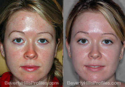 front view Female before and after Facial Peels