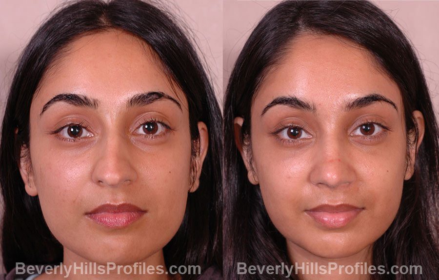 before and after Female Rhinoplasty
