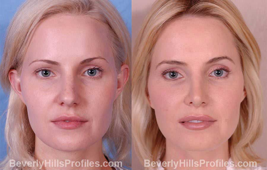Female before and after Rhinoplasty - front view