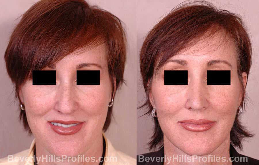 Female before and after Nose Job - front view