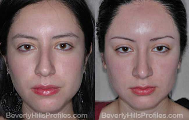 Female patient before and after Nose Job - front view