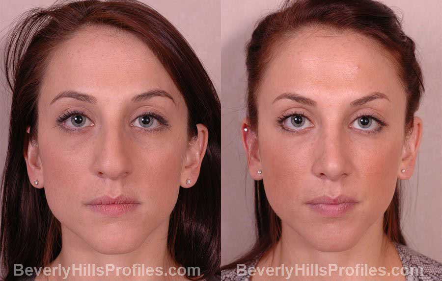 Female patient before and after Nose Job front photos