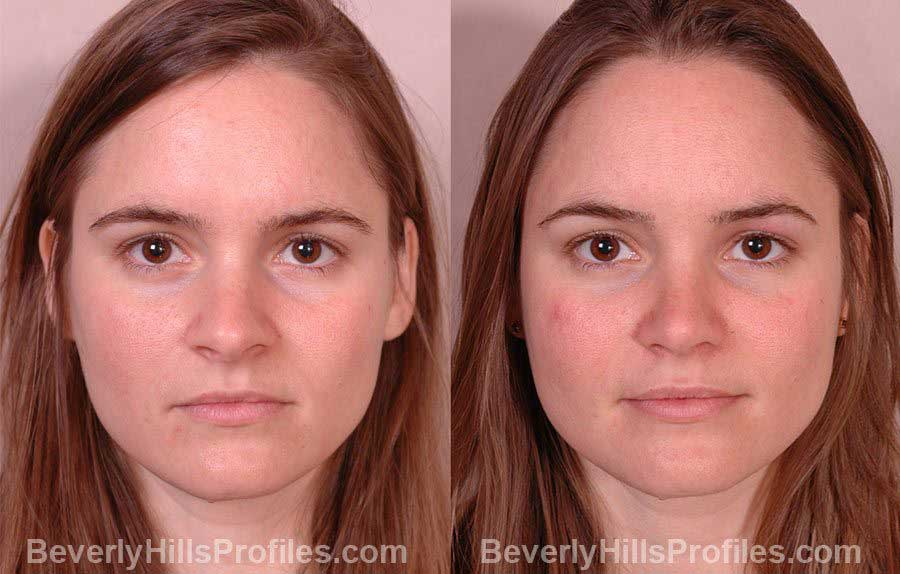 photos Female before and after Nose Job - front view