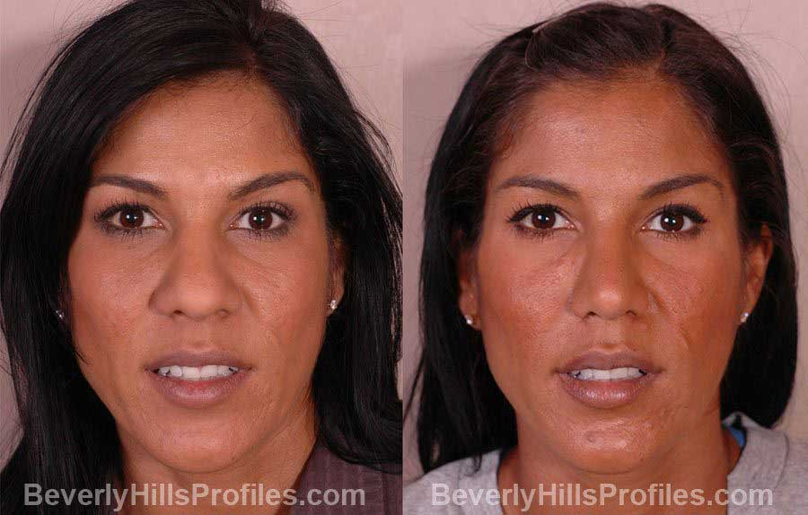pics Female before and after Nose Job - front view