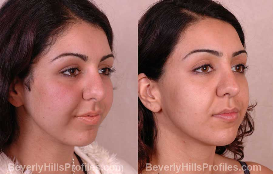 imgs Female before and after Nose Job - front view