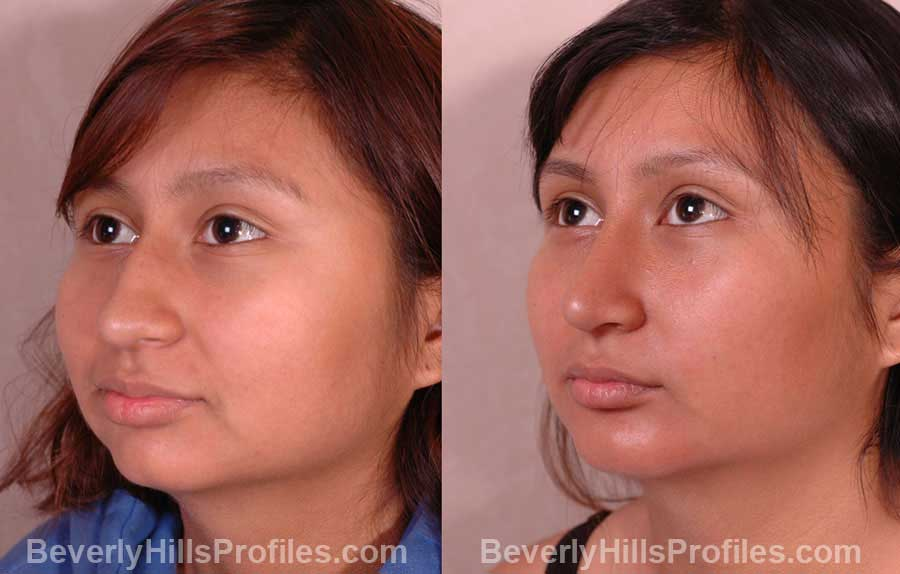 pics Female before and after Nose Job front view
