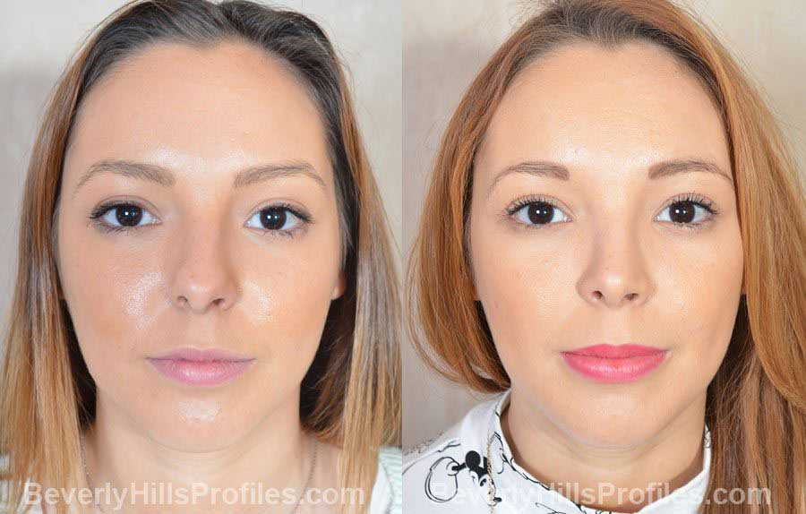 Photos Female patient before after Nose Job front view