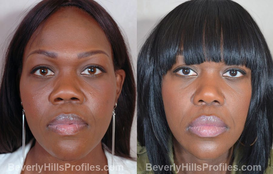 Female face before and after RHINOPLASTY SURGERY treatment, nose, patient 2 (front view)