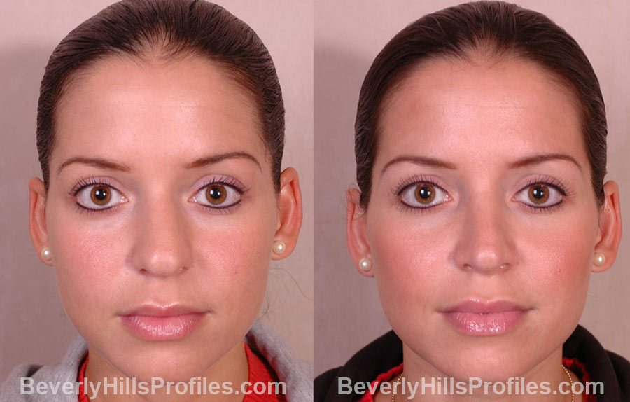 Female face before and after RHINOPLASTY SURGERY treatment, nose, patient 1 (front view)
