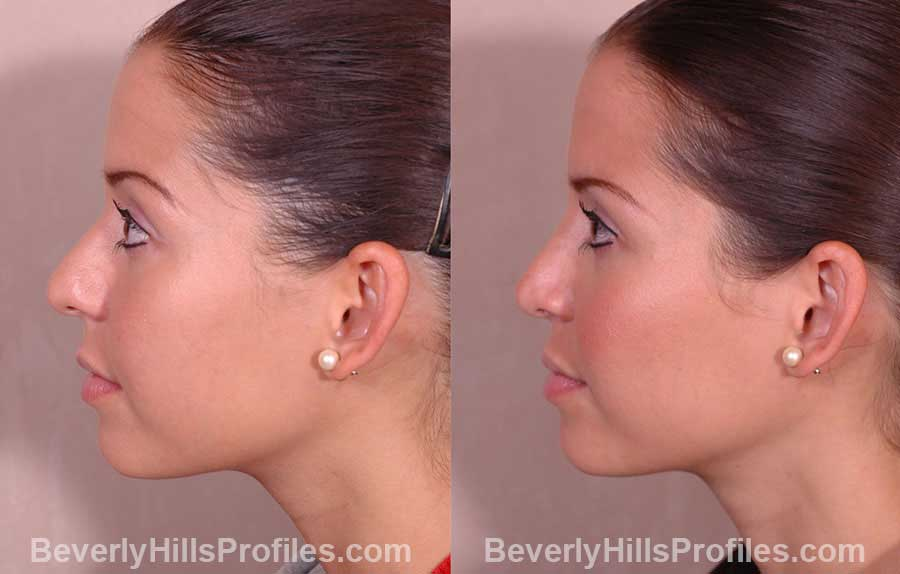 front view Female before and after Rhinoplasty