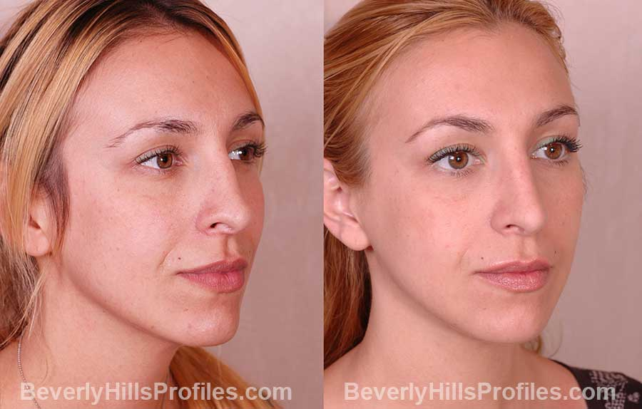 front view, Female patient before and after Rhinoplasty