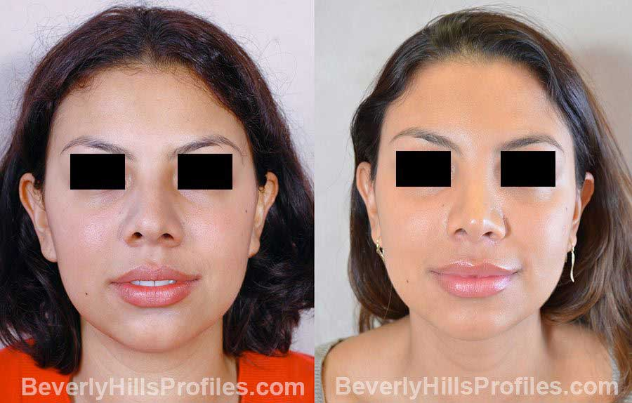 before and after Revision Rhinoplasty