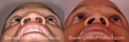 underside view Male before and after Rhinoplasty