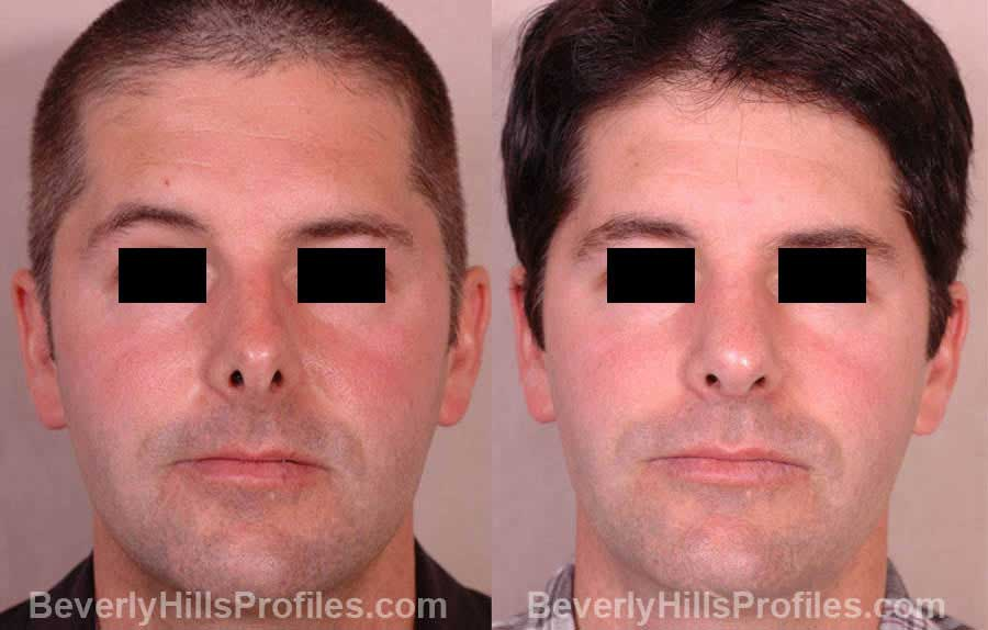 front view - Male patient before and after Nose Job