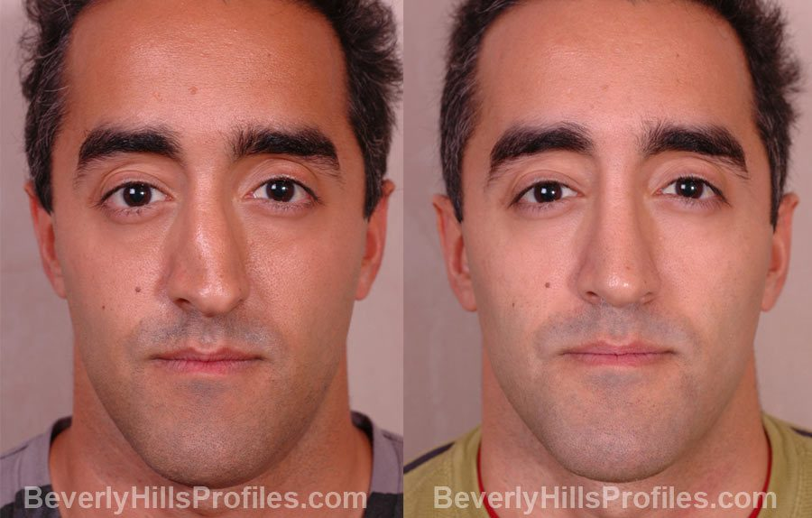 Revision Rhinoplasty Before and After Photo Gallery - front view, male patient 20