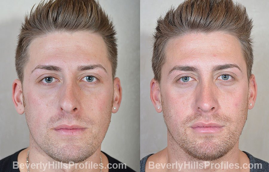 Male patient before and after Rhinoplasty - front view