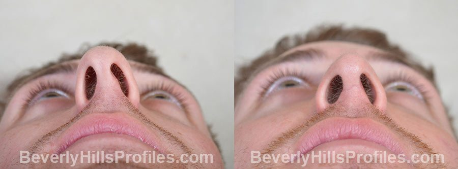 Male patient before and after Rhinoplasty - underside view