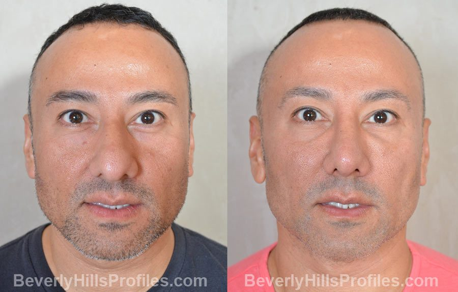 before and after Male Rhinoplasty