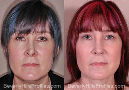 before and after Necklift Procedures - front view