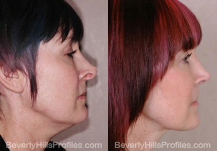 before and after Necklift Procedures - right side view