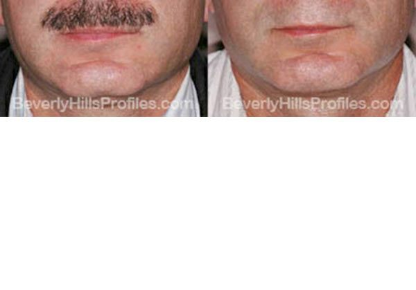 pics before and after Necklift