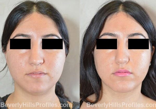 photos before and after Necklift Procedures