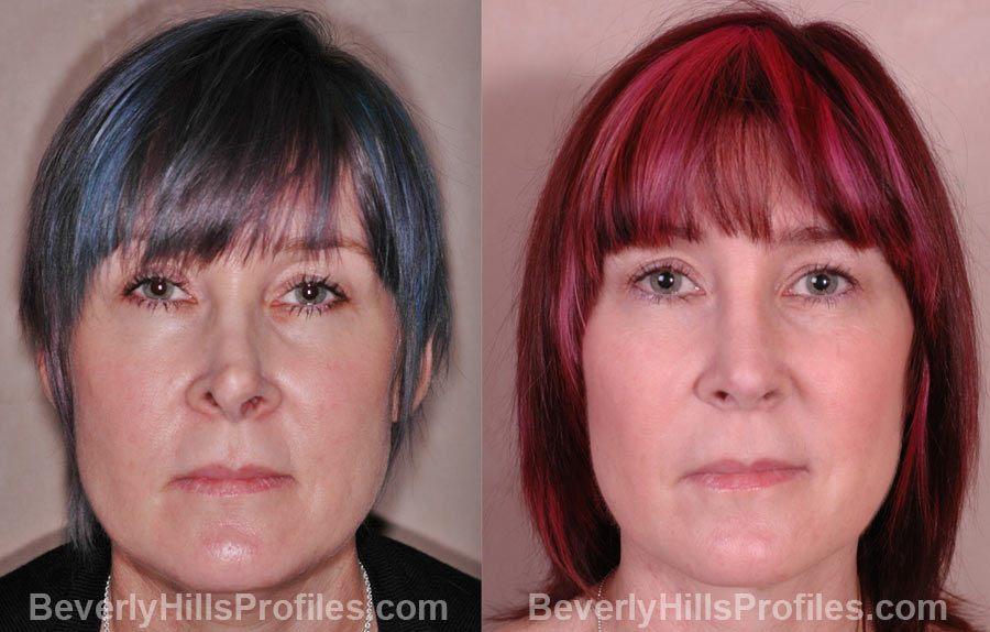 Revision Rhinoplasty Before and After Photos - female, front view, patient 1
