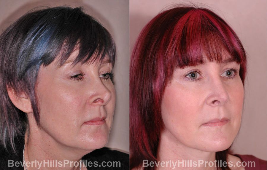 Revision Rhinoplasty Before and After Photos - female, right side oblique view, patient 1