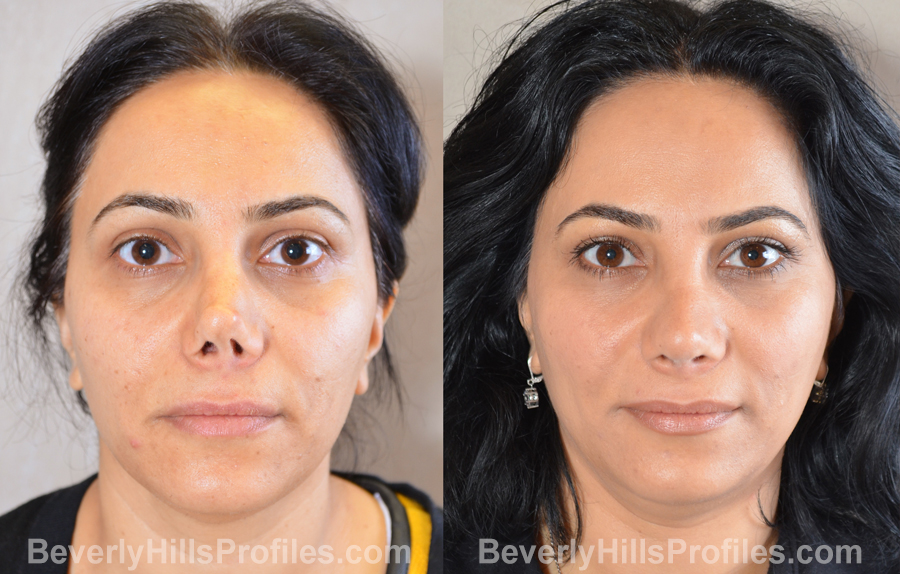 Female patient before and after Revision Rhinoplasty - front view