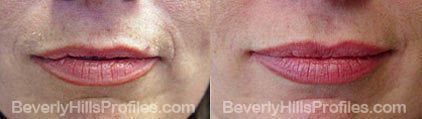 Wrinkle Fillers Before & After Photos