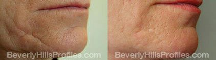 Photos Wrinkle Fillers Before and After