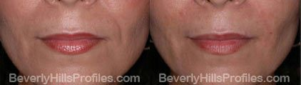 Images Wrinkle Fillers Before & After