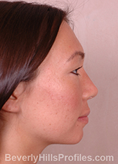 Female face, after Asian Rhinoplasty treatment, right side view, patient 1
