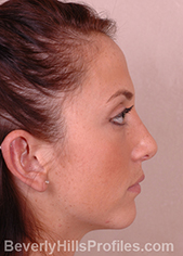 Female face, after external nasal valve treatment, right side view