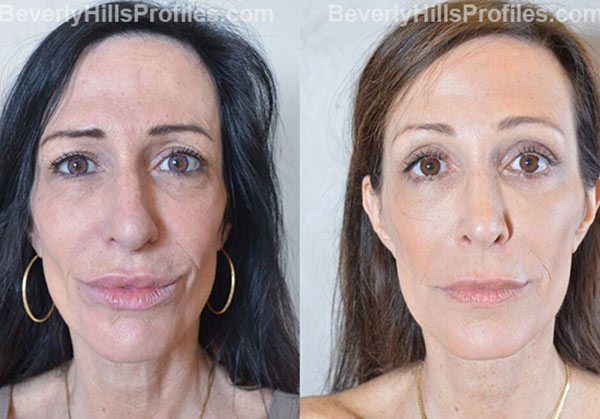 female patient before and after Browlift