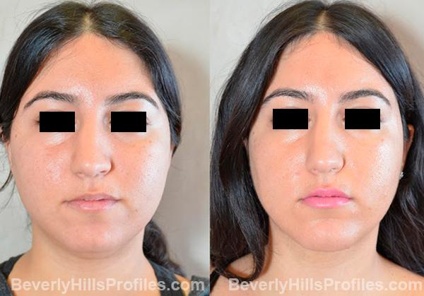 Female patient before and after Chin Implants, photos