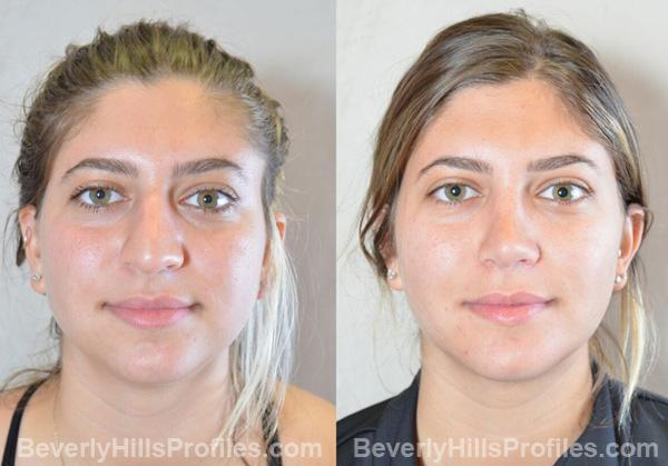 Female before and after Chin Implants - front photos