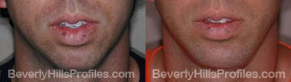 Male patient before and after Chin Implants - front view