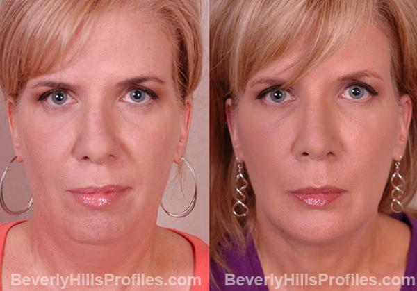 Female patient before and after Chin Implants - front view