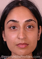 Young woman's face, before ethnic rhinoplasty treatment, front view, patient 1