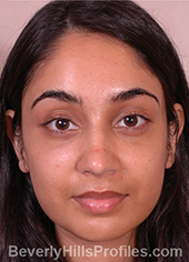 Young woman's face, after ethnic rhinoplasty treatment, front view, patient 1