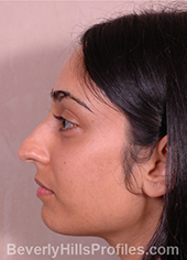 Young woman's face, before ethnic rhinoplasty treatment, left side view, patient 1